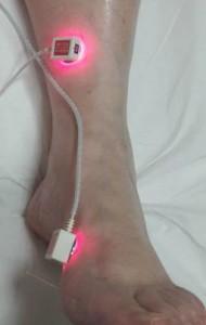 laseracupunctuur acupunctuur energieker heemskerk beverwijk